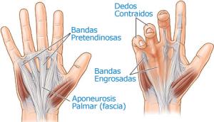 la-enfermedad-de-Dupuytren-tratamientos-quirúrgico-y-no-quirúrgico-300x172