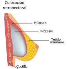 aumento-de-pecho-plano-de-colocación-retromuscular