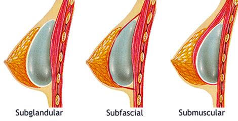 aumento-de-pecho-planos-de-colocación-de-los-implantes-