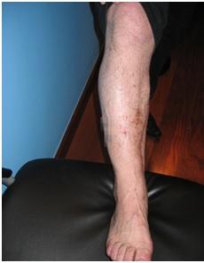Úlceras-crónicas