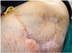 Úlceras-por-presión-de-decúbito