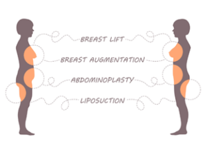 breast-300x221