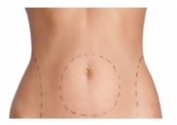 liposuccion-cirugia-estetica-en-Santander-Burgos-y-Valladolid