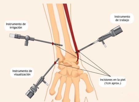 cirugía de muñeca | artroscopia