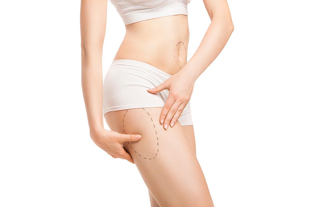 Una liposucción o lipoescultura