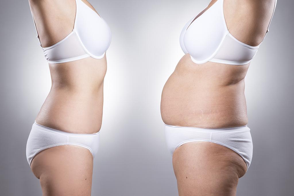 Liposucción o lipoescultura, qué es y en qué consiste