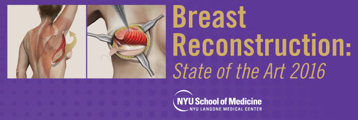 Breast Reconstruction: State of the Art 2016