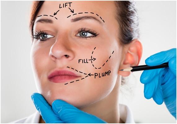 lipolifting-facial