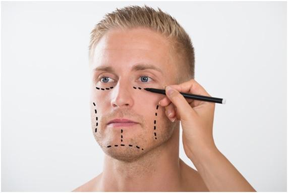 cirugías-en-hombres