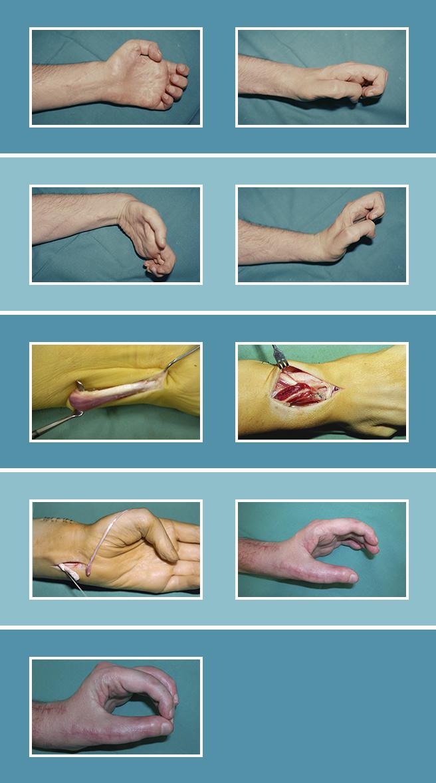 20.-Cirugia-secundaria-nerviosa_20.1