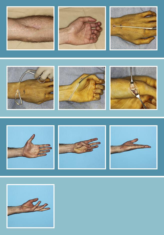 20.-Cirugia-secundaria-nerviosa_20.2