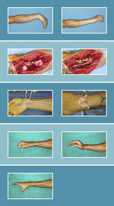 20.-Cirugia-secundaria-nerviosa_20.3