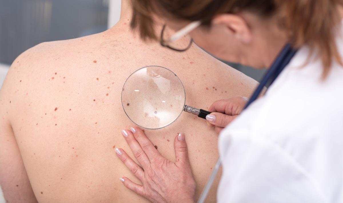 La cirugía plástica reparadora frente al cáncer de piel