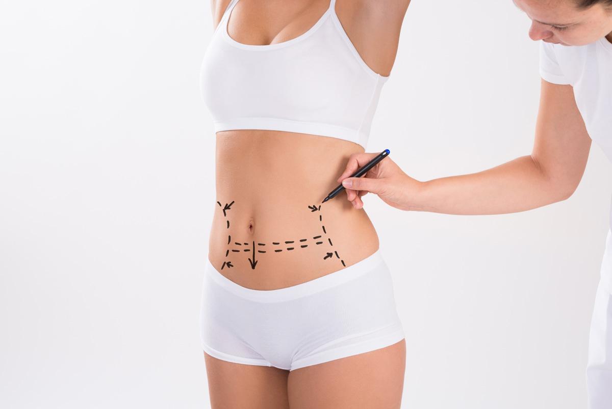 8 preguntas y respuestas sobre la liposucción