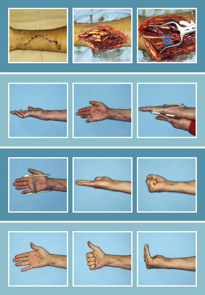 19.-Lesiones-nerviosas_19.1