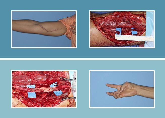 19.-Lesiones-nerviosas_19.2