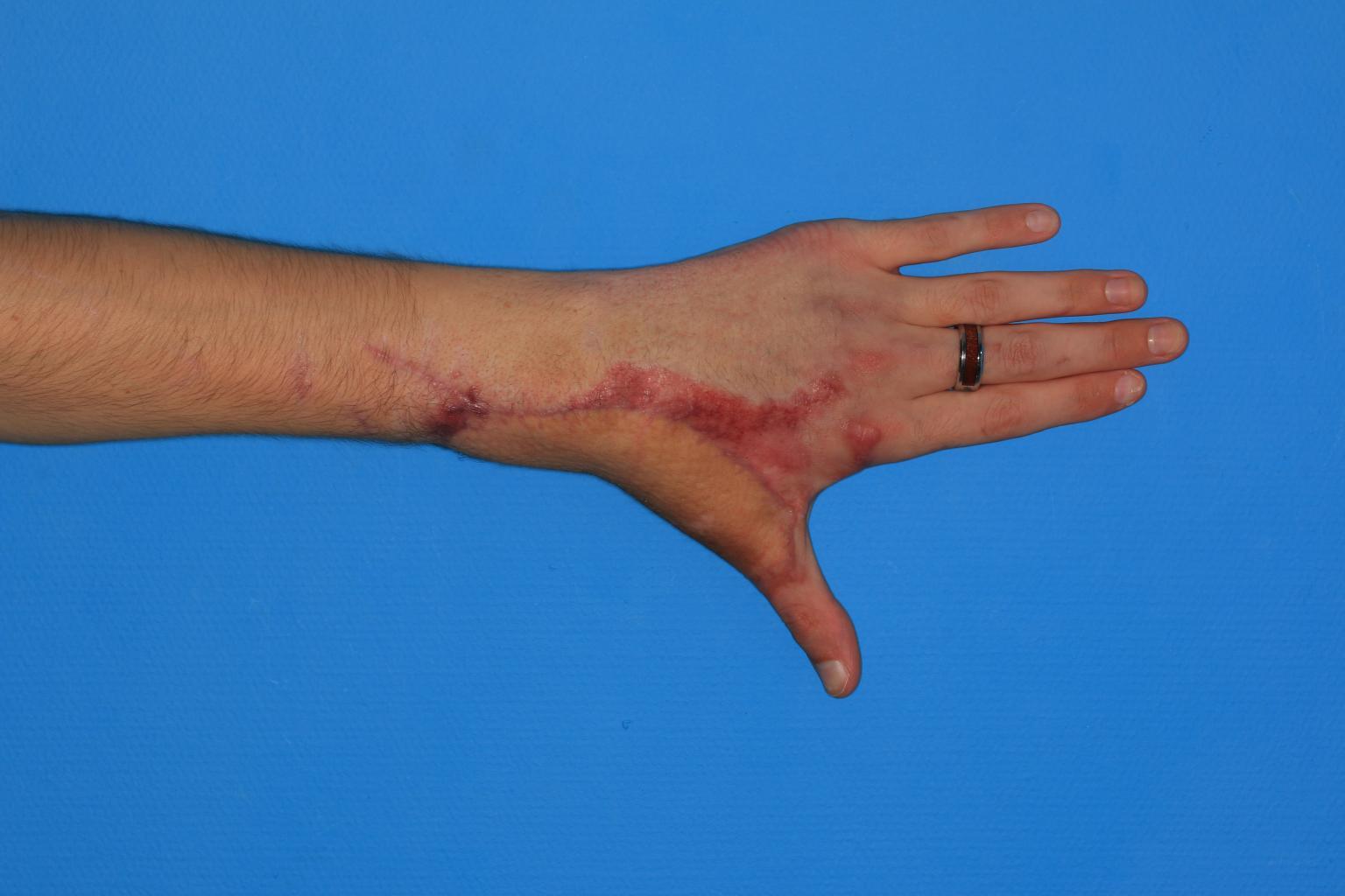 Caso Real de cirugía de la mano | Colgajo ilíaco y un injerto de tendón