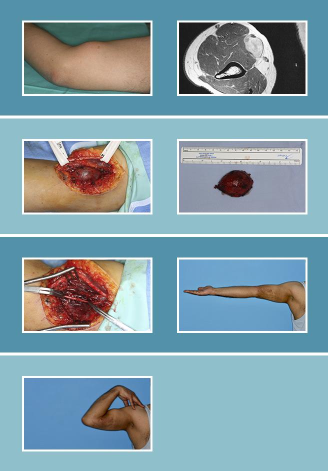 16.-Malformaciones-vasculares_16.1