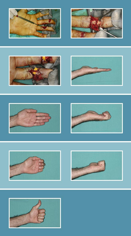 8.-Lesiones-flexores-y-extensores_8.2