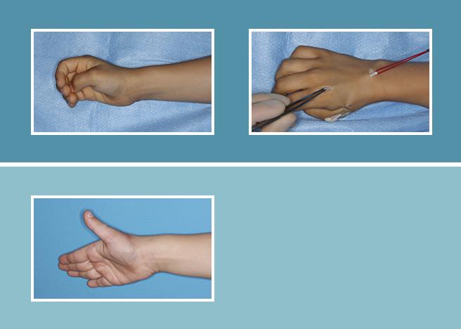 8.-Lesiones-flexores-y-extensores_8.4