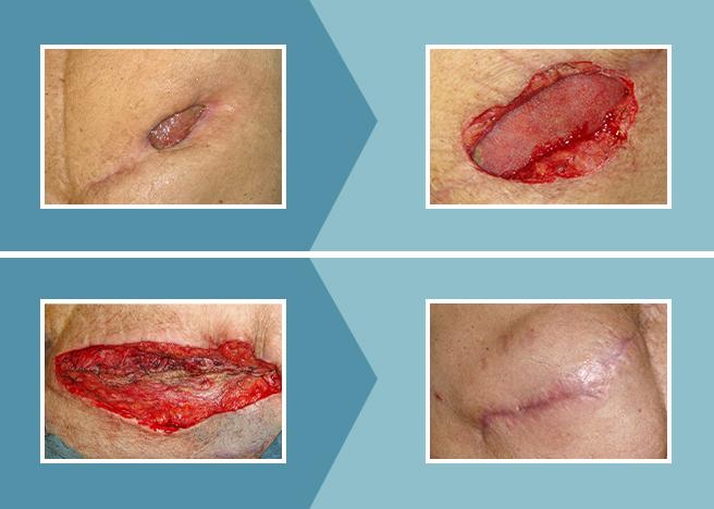 Cicatrizacion_caso1
