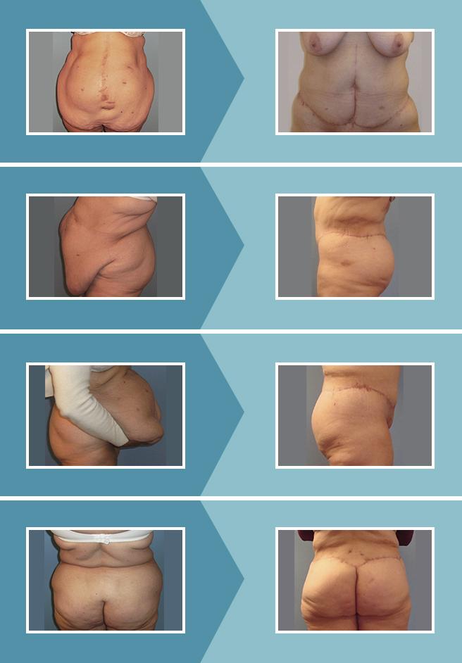 Contornoplastia-circunferencial