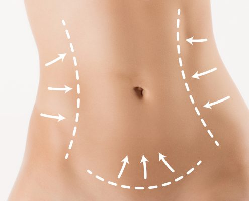 Body correction with the help of plastic surgery on white background