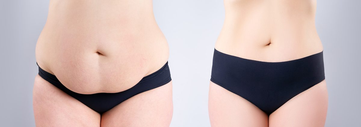 cirugia-tras-obesidad
